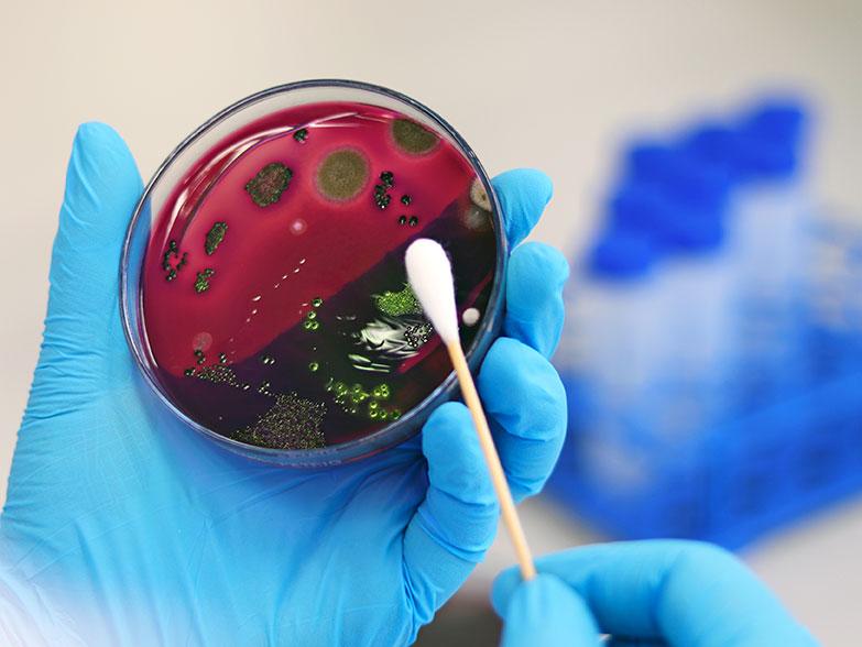 A Petri dish shows bacteria on a test swab.